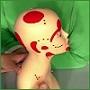 Головная боль – невралгия затылочного нерва