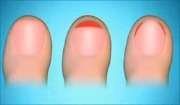 Вросший ноготь на ноге у ребенка 2 лет лечение