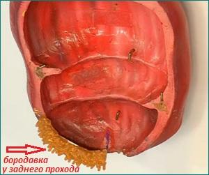 Папиллома небной миндалины фото