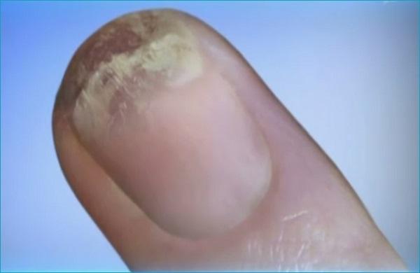 Грибок ногтей микоз