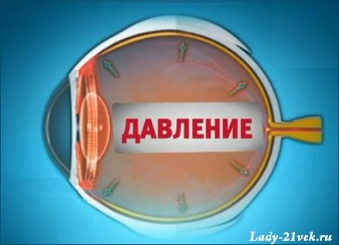 glaukoma_5