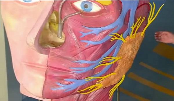 опухоль околоушной слюнной железы